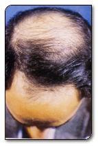 La betulla parte a una perdita di capelli
